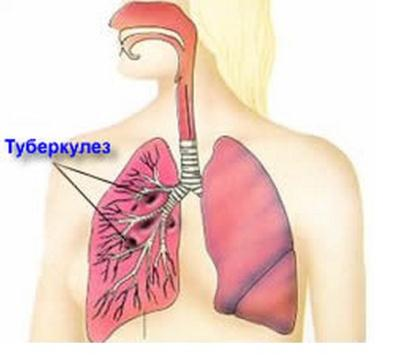 pulmonary-tuberculosis.jpg